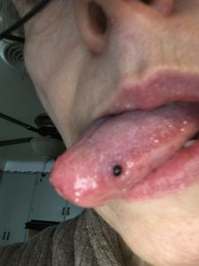 15May2021 Had couple dozen blood blisters on side+top of tongue